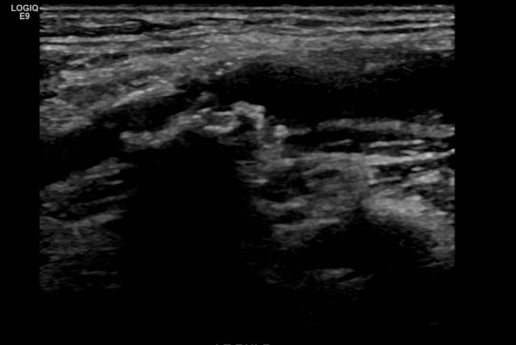 Carotid ultrasound