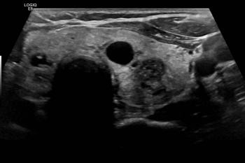 Ultrasound of the Thyroid